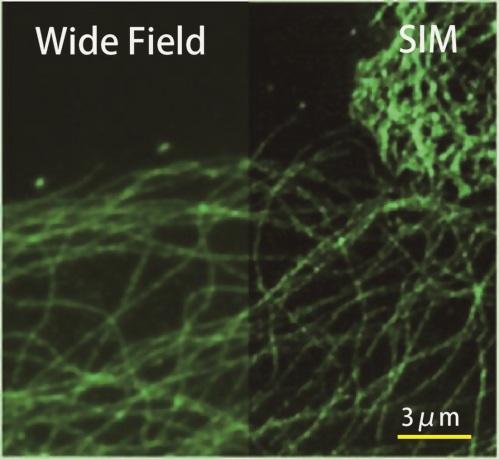 Super Resolution Microscope