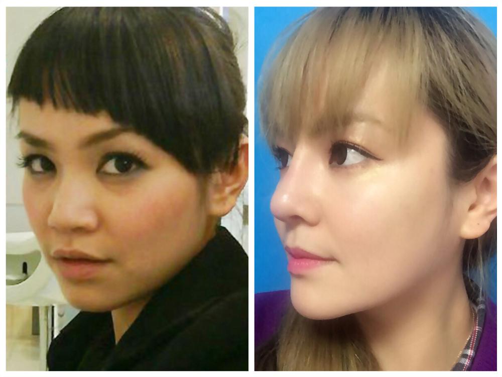 關於隆鼻手術『二段式隆鼻』『三段式隆鼻』,如何區分?