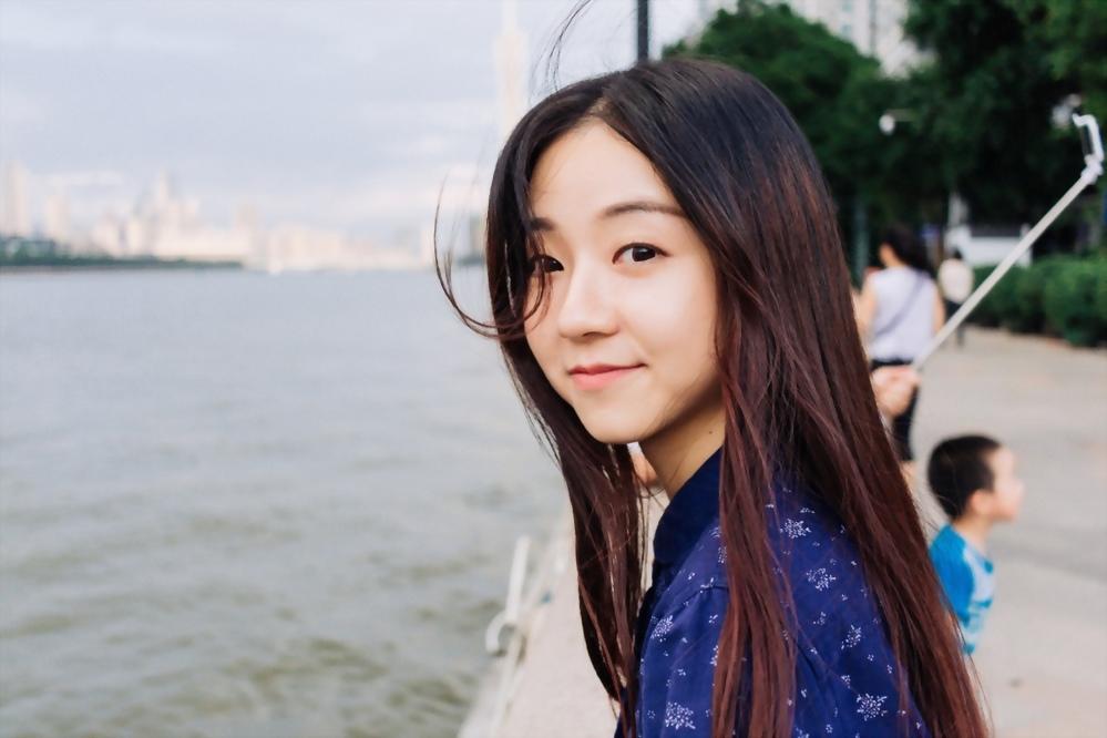 【植髪】美型髮際線可以改善臉型還可以變年輕