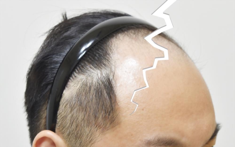 嚴重落髮是你心中的恐懼嗎?